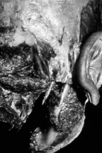 proformed formations médicales, podologie et anneau pelvien